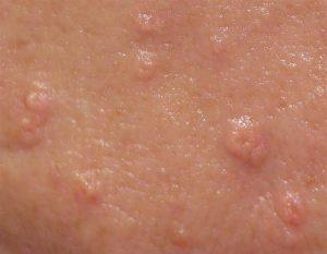 Advanced Cosmetic Procedures - Barnstaple Electrolysis Clinic